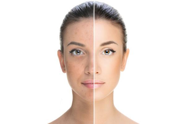 I consigli per mantenere una pelle sana