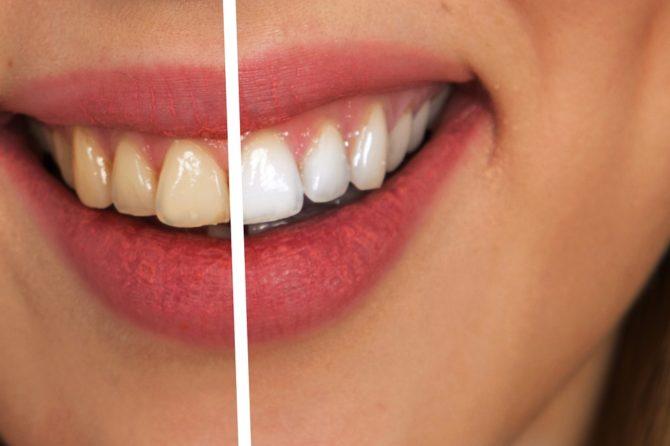 Lo sbiancamento dentale